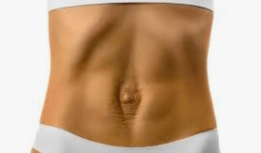 abdominal separation after pregnancy