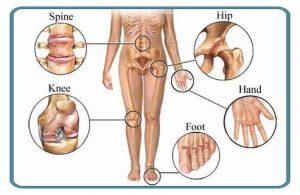 Osteoarthritis-physiotherapy-treatment