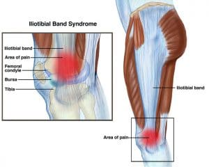ITB-syndrome-pain