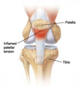 inflamed-patella-tendon