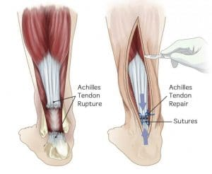 achilles-tendon-surgery