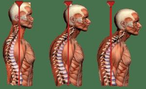 forward-head-posture-physio