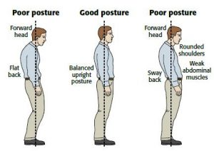 poor-posture-physiotherapy